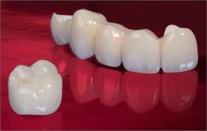 tooth replacement dental bridges