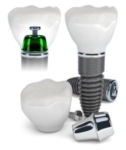 dental implants south orange dentist